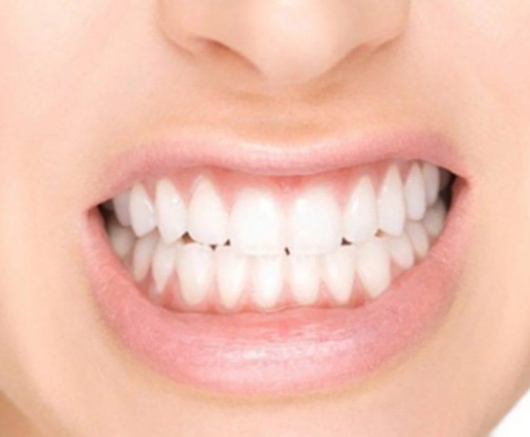 Diş Sıkma